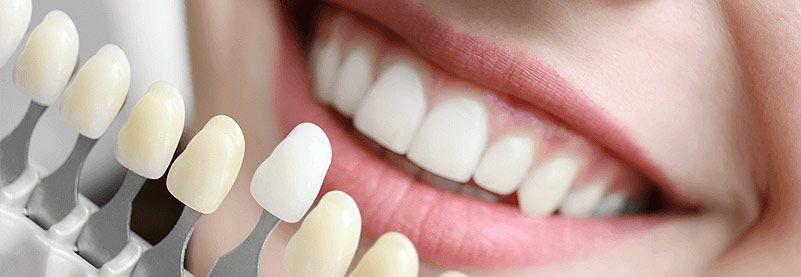 Dentist Bendigo McCrae Marong Strathfieldsaye Dental services